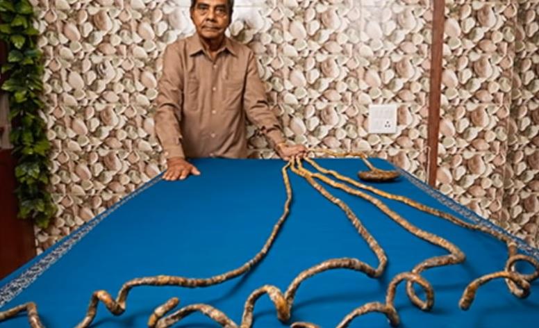 Csak erős gyomrúaknak: 66 év után vágta le körmeit egy indiai férfi – fotó