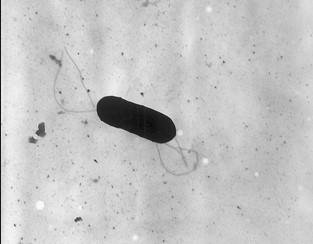 Listeria baktériummal szennyezett ételeket hívtak vissza az USA-ban