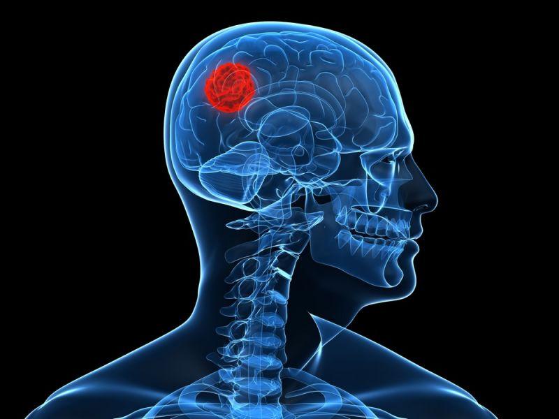Tíz éven belül 20 millió fölé emelkedhet a stroke áldozatainak száma