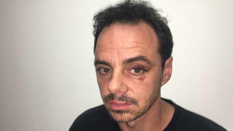 Megvertek egy színészt Budapesten – ez a támadó még szökésben van