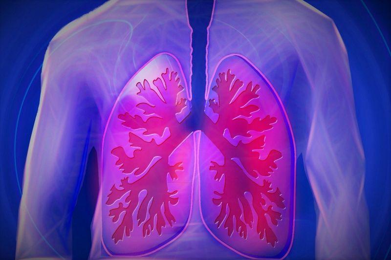 Tüdőgyógyász: ilyen arányban alakul ki tüdőgyulladás a koronavírusos betegeknél