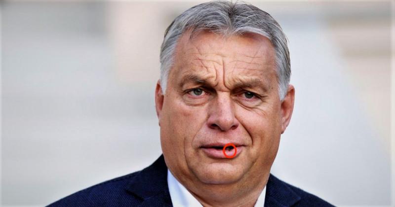 Mi történhetett, beteg lenne Orbán? – nagyon furcsa dolgot fedeztek fel a kormányfő arcán (képek)